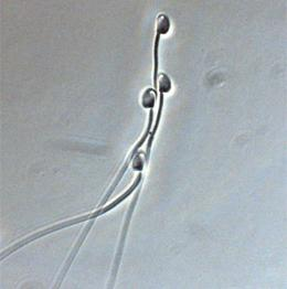 news.2010.22.spermfig1b